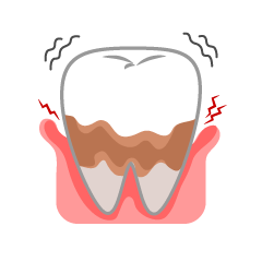 Terrible Periodontal Tooth Clipart