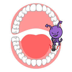 Caries in the Mouth Clipart
